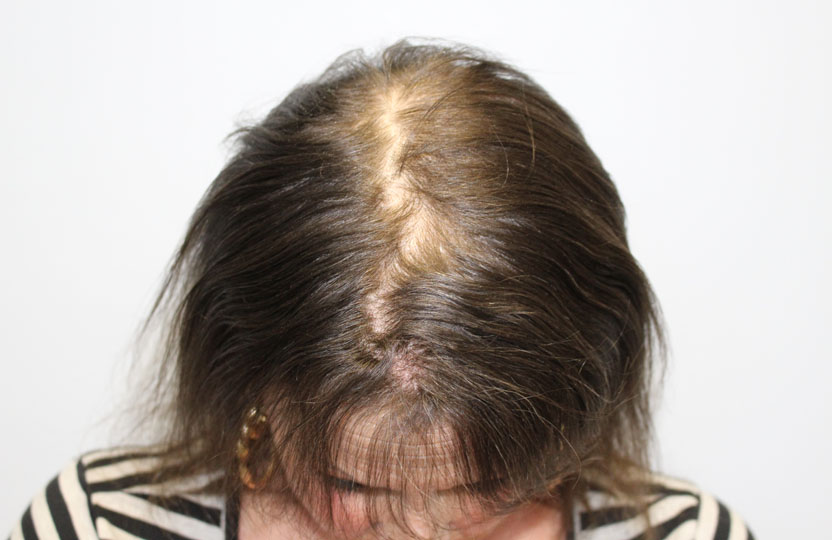 hair loss scalp image